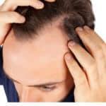 trockene Kopfhaut