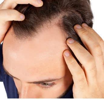 Die besten Hausmittel gegen trockene Kopfhaut