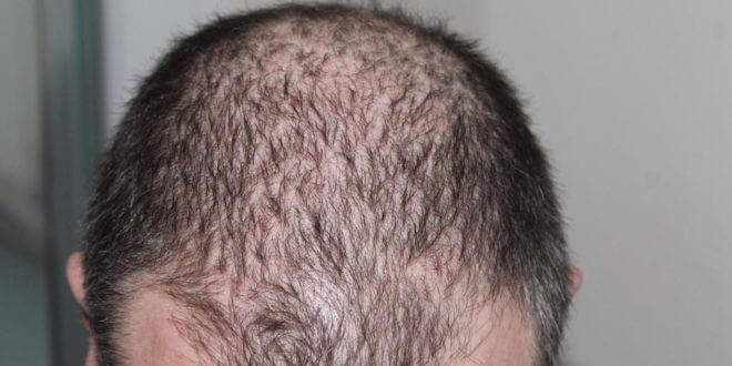 DHI Haartransplantation in der Türkei: Methoden, Vorher-Nachher-Vergleich und Vorteile