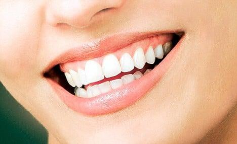 Gelbe Zähne – hier helfen oftmals einfache Hausmittel